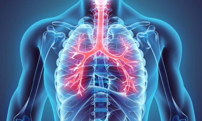бели дробове, пушене
