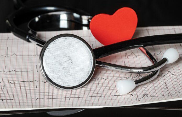 сърце илектрокардиограма